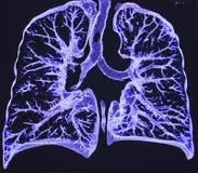 肺, CT 免版税库存照片