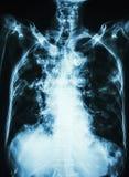 肺结核 影片老耐心展示细胞间的滤渗肺和石灰化胸部X光在气管c 库存图片