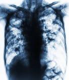 肺结核 影片胸部X光展示纤维变性,洞,两细胞间的滤渗肺由于分枝杆菌属tuberculos 免版税库存照片