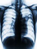 肺结核 影片胸部X光展示齿龈音渗入在左中间肺由于结核杆菌传染 免版税库存图片