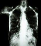 肺结核(影片胸部X光:间隙植物渗入两肺由于结核杆菌传染) 免版税库存图片