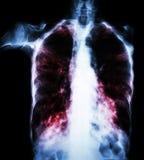 肺结核(影片胸部X光:间隙植物渗入两肺由于结核杆菌传染) 库存照片