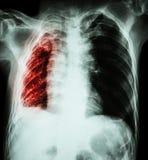 肺结核 胸部X光:正确的肺肺不张和滤渗和流出由于结核杆菌我 免版税库存图片