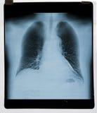 肺X-射线地图 免版税库存照片