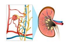 肾小球性肾炎GN 向量例证