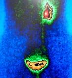肾脏流程,绿色,核医学 库存图片