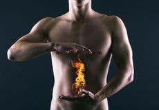 胃灼热。 库存图片