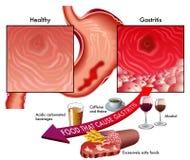 胃炎 库存图片