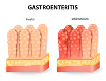 胃肠炎或感染腹泻 免版税图库摄影