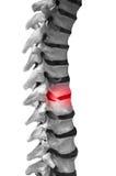背部疼痛 库存图片