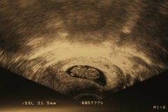 胚胎 库存图片