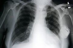 胸口心脏起搏器 库存图片