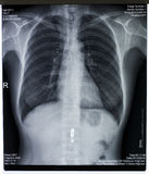 胸口的X-射线图象 库存照片