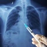 胸口CT扫描和注射器 免版税库存照片