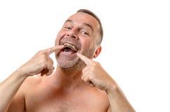 胸部赤裸的人指向有两个手指的牙 免版税图库摄影