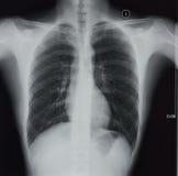 胸部X光 免版税库存图片