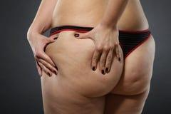 脂肪团-坏皮肤状况 免版税库存图片