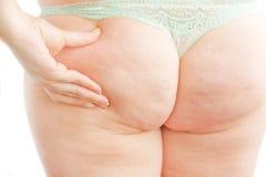 脂肪团 免版税图库摄影