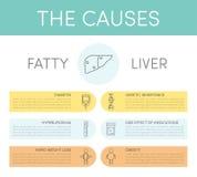 脂肪肝的原因 皇族释放例证