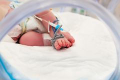 脉冲血氧定量计在新出生的婴孩的脚的传感器和滴水线 免版税库存照片