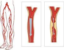 脉管系统腿 免版税库存图片