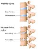脊椎的骨关节炎 图库摄影