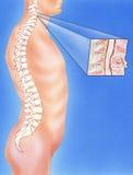 脊椎-显示颈椎破裂的被伤的脖子 免版税库存图片