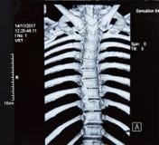 脊椎MRI X-射线 库存照片