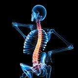 脊髓绳子的痛苦 库存图片