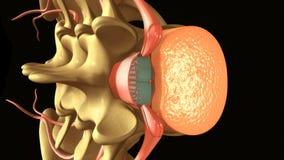 脊髓&硬膜外麻醉 库存例证