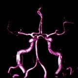 脑动脉 库存图片