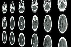脑子展示局部缺血的冲程和出血性的strok影片CT扫描  免版税库存图片