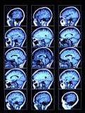 脑子扫描 库存照片