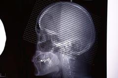 从脑子的一种电脑断层摄影术的图象 库存照片