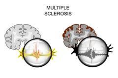 脑子的多发性硬化症 免版税库存照片
