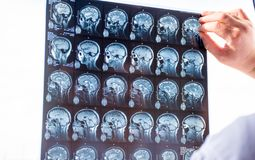 脑子的考试与MRI的 紧急患者脑子MRI命令扫描新快照的医生使用X-射线视框和h的 库存图片