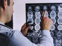 脑子的CT扫描 脑子图象光芒x 医生,看计算机X射线断层造影的X射线学在negatoscope的 库存照片