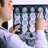 脑子的CT扫描 脑子图象光芒x 医生,看计算机X射线断层造影的X射线学在negatoscope的 免版税库存图片