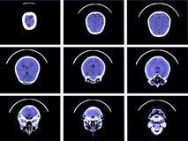 脑子计算机控制X线断层扫描术 免版税库存照片