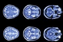 脑子计算机控制X线断层扫描术的X-射线图象 免版税库存照片