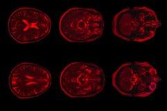 脑子计算机控制X线断层扫描术的X-射线图象 库存图片