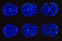 脑子计算机控制X线断层扫描术的X-射线图象 免版税库存图片