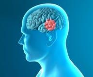 脑子退化疾病帕金森 库存照片