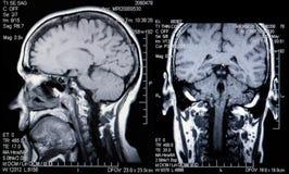 脑子顶头mri实际扫描 库存照片