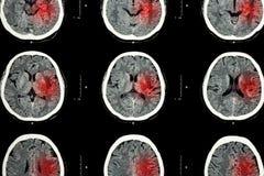 脑子CT扫描与红色区域(出血性的冲程或局部缺血的冲程(梗塞)概念的)想象的 库存图片