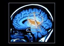 脑子mri扫描重点 库存照片