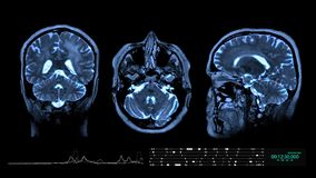 脑子MRI背景 股票视频
