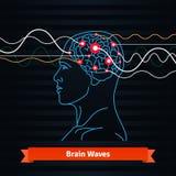 脑波 电极被连接到人头 免版税库存图片