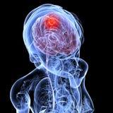 脑癌女性 免版税库存照片