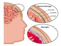 脑膜炎 库存图片
